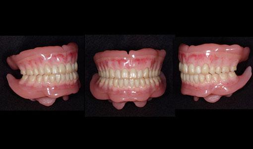 高精度の入れ歯